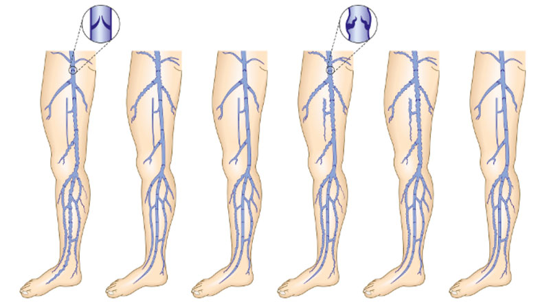 Mechanism of Varicose Veins