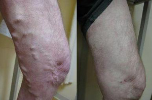 Varicose Veins Before (L) and After (R) Treatment